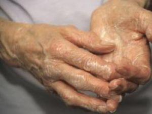 Sănătate: Remedii pentru tratarea suferinzilor de reumatism