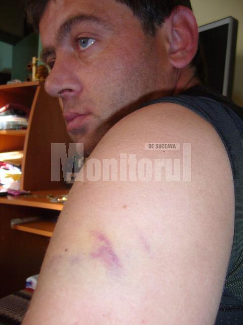 Florin Matei spune că aceste răni i-au fost provocate cu ranga de unul din şefii AJF Suceava