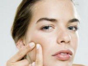 Aspirina poate fi folosită şi pentru tratarea ocazională a acneei