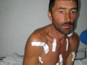 Ciobanul împuşcat a ajuns la spital cu multiple alice în cap, torace şi mâini