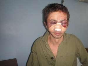 Dragoş Constantin Dina a fost  bătut măr, jefuit, lăsat doar în chiloţi în apropierea cimitirului central din municipiul Rădăuţi