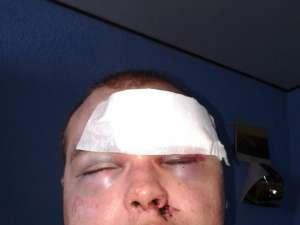 Tânărul desfigurat în bătaie. Foto: FaceBook
