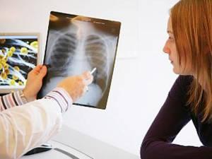 Astmul este o boală cronică de plămâni, caracterizată prin probleme recurente de respiraţie
