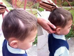 Băieţelul prezintă leziuni la nivelul capului și are nevoie de 4-5 zile de îngrijiri medicale