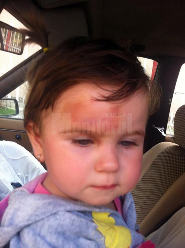 Fotografiile au fost făcute la patru zile de la incident, după ce micuţei i-au fost puse comprese şi foi de varză