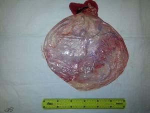 Chistul de 12 kg operat de dr. Diaconu