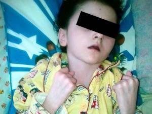 Adina Ortoanu, fetiţa care a rămas paralizată în urma accidentului de pe 15 ianuarie 2013