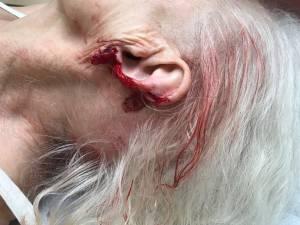 O parte din urechea bătrânei a fost smulsă în urma agresiunii