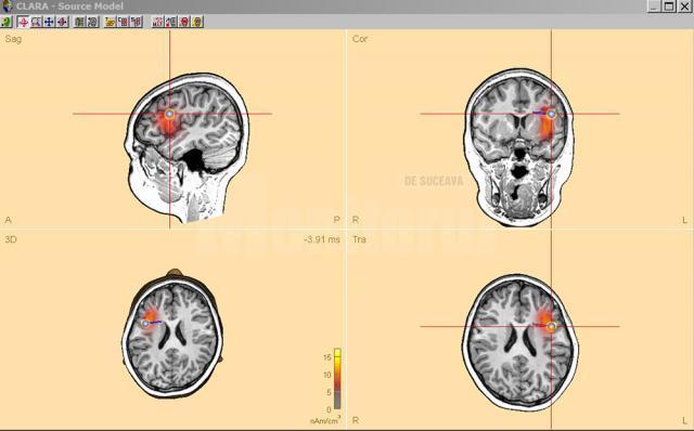 Dr. Anna Miron prezintă cele patru focare de epilepsie ale fetiței
