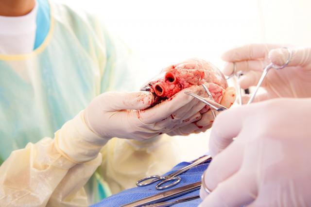 Transplant de inimă. Foto: austria center viena