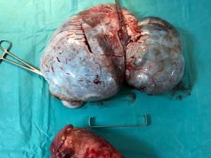 Tumorile extirpate de echipa medicală