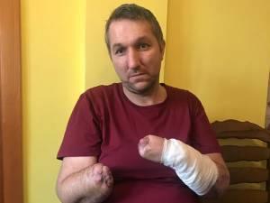 Constantin Cazac, în vârstă de 40 de ani, cu ambele mâini amputate, în urma unui accident, are nevoie urgent de două proteze