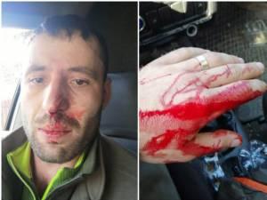 Pădurarul Răzvan Cenușă, după altercația cu patronul unei vulcanizări, implicat în afaceri cu lemn, în Moldovița - Foto: recorder.ro