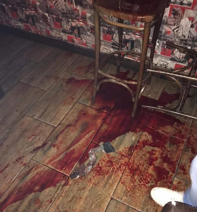 Martorii l-au adus pe agentul de pază în interiorul barului, unde acesta a sângerat abundent
