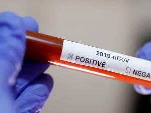 În urma testelor efectuate la nivel național au fost înregistrate 1.415 de cazuri noi de persoane infectate
