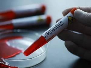 Din 138 de persoane testate, 38 au fost depistate cu coronavirus, în ultimele 24 de ore Foto europafm.ro