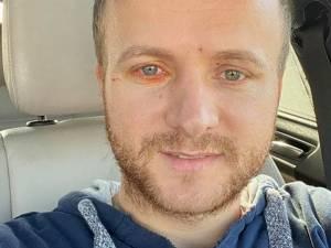 Daniel Bodnar a fost operat ieri de o echipă de la Spitalul de Neurochirurgie Iași