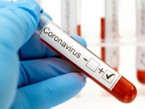 Incidenţa cazurilor de Covid în comuna Iacobeni este de 1,51 la mie și în comuna Coșna de 3,41 la mie