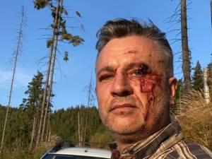 Fondul forestier în care au fost agresați Tiberiu Boșutar și cei doi jurnaliști este administrat de un ocol silvic privat
