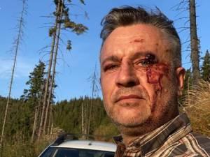 Activistul Tiberiu Boșutar, umilit în pădure de agresorii care l-au sechestrat  FOTO Facebook Legea codrului