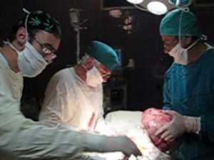 Tumoră gigant extrasă din abdomenul unei femei
