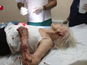 O bătrână a fost sfâşiată de un câine, chiar în faţa blocului în care locuieşte