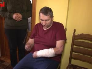 Un bărbat din Bădeuţi cu ambele mâini amputate are nevoie urgent de proteze