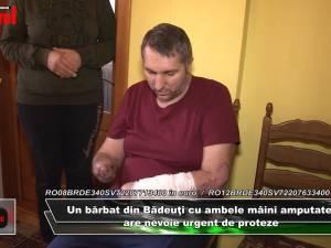 Bărbatul din Bădeuţi cu ambele mâini amputate are nevoie în continuare de ajutor pentru a-şi cumpăra proteze